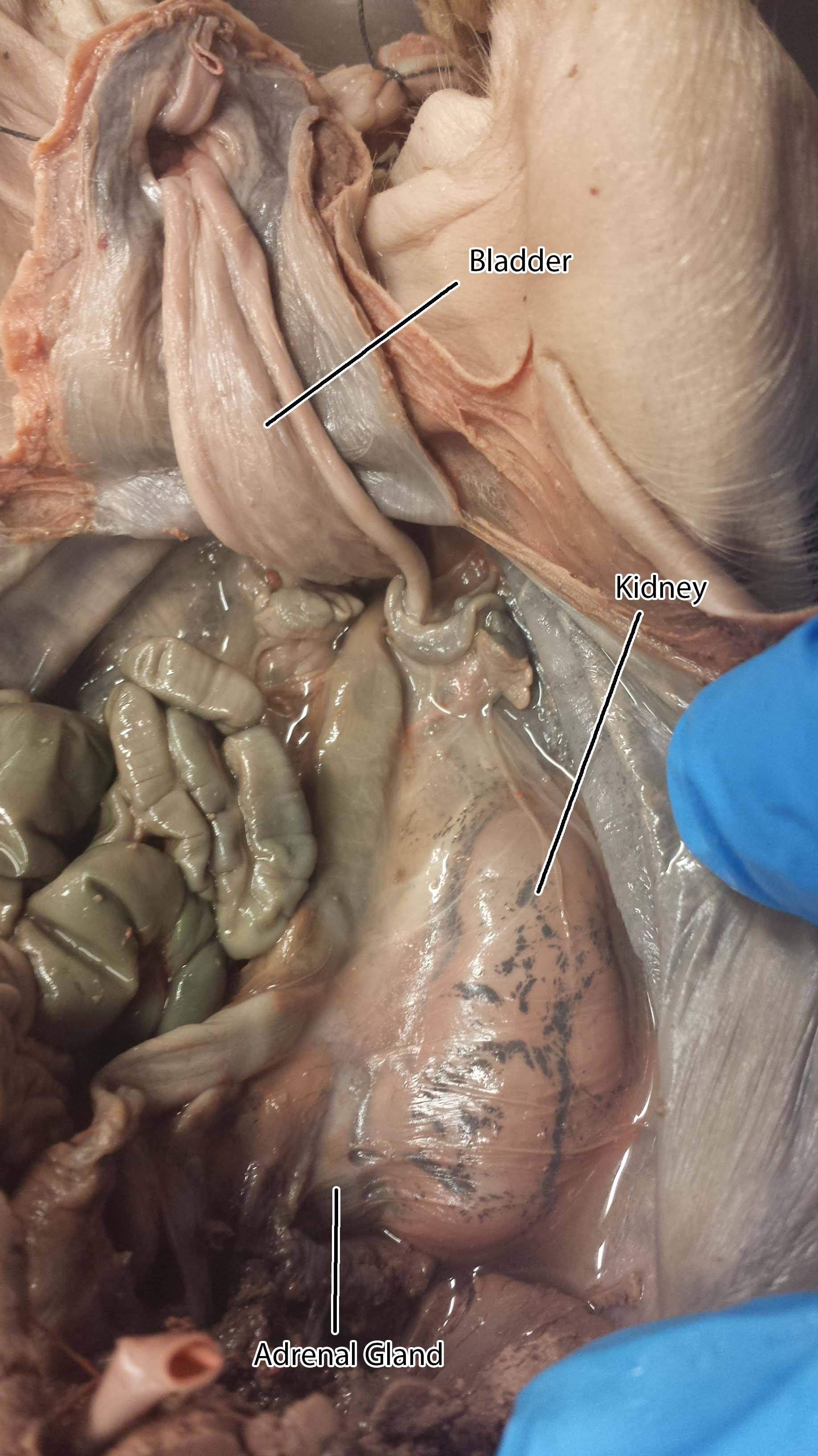 Photographs Of Urinary System